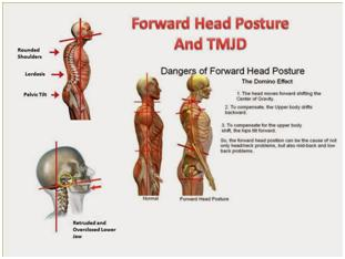 Understanding Tmj Syndrome What It Is How To Cure It Seattle